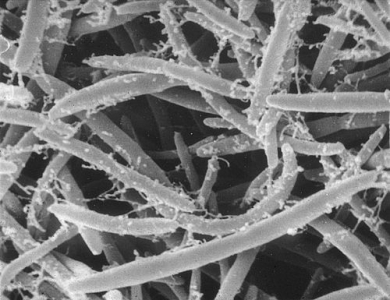 Bacteries anareobies strictes. Clostridium tapissant le gros intestin.