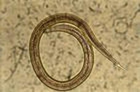 Strongles digestifs. Parasites des ruminants. Larves infestantes du 3éme stade.