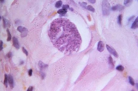 Présence d'un kyste de toxoplasme contenant des bradyzoïtes en développement dans un muscle humain (grossissement x 900 d'une coupe de tissu colorée à l'hématoxyline-éosine)