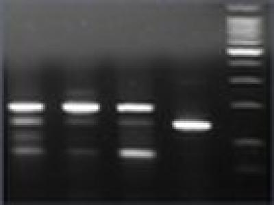 Gel d'électrophorèse d'ADN de bactéries