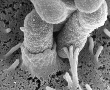 Entrée de Escherichia coli exprimant Rck de Salmonella dans une cellule épithéliale en culture.