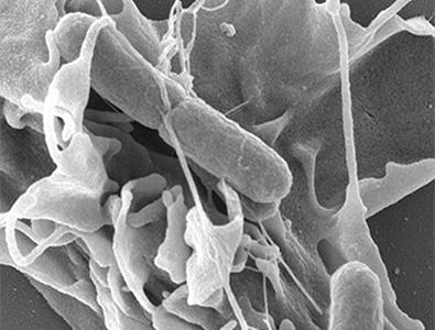 Réarrangements de la surface cellulaire induits par les mécanismes d'invasion de Salmonella; Microscopie à balayage