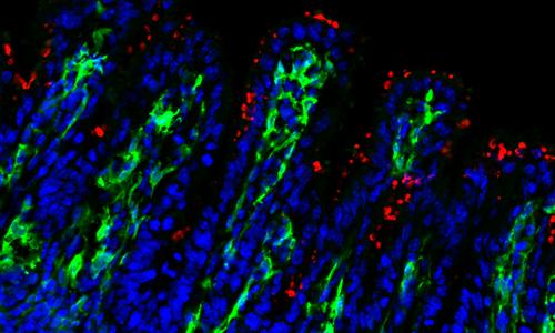 Muqueuse iléale de souriceaux nouveau-nés Cx3cr1gfp/+ infectés par Cryptosporidium parvum, en bleu coloration du noyau, en vert les cellules Cx3cr1+. Les macrophages CD64 et le monocytes infalmmatoires Ly6c+ représentent la population Cx3cr1+.
