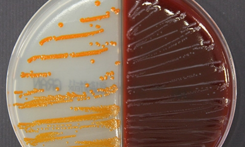 Streptococcus agalactiae culture on Granada agar and blood agar