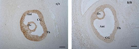 Figure--2-AMH