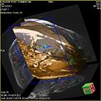 Tractographie sur cerveau de porc acquise par IRM (étude des fibres nerveuses)