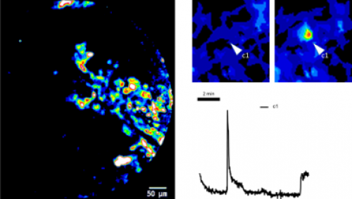 Activité calcique cérébrale in vivo par la technique cellvizio