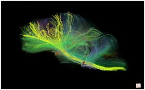 Image IRM de tenseur de diffusion