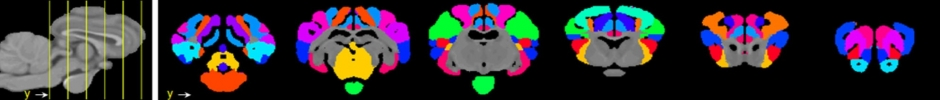 Sheep brain segmentation
