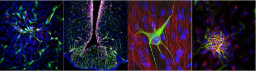 Culture de neurones - Niche neurogénique Hypothalamique - Cellule Gliale (vert) parmi des tanycytes (rouge) - Neurosphere hypothalamique en différentiation