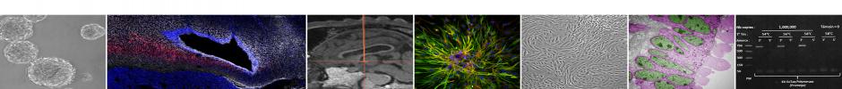 Neurosphères hypothalamiques de souris adultes - Coupe parasagitale de cerveau de mouton - Séquence IRM de cerveau de mouton - Neurosphère en differentiation - Culture de tanycytes - Tanycytes en microscopie électronique - PCR