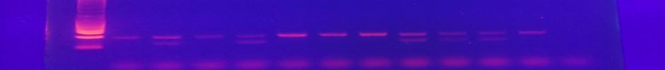 ADN amplified